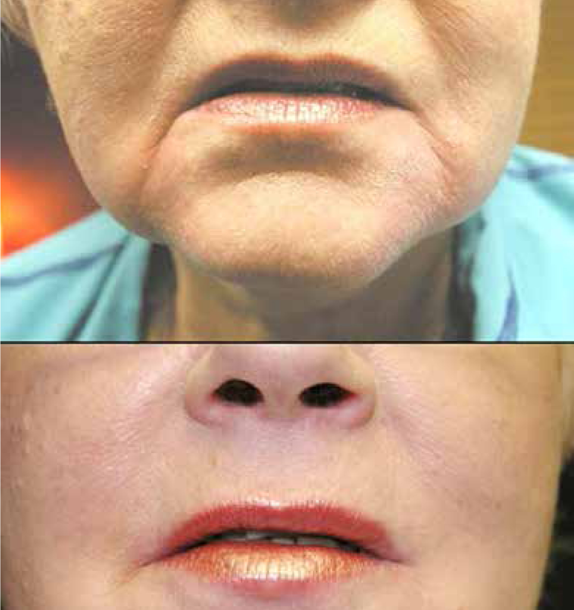 Before (top) and after botox.